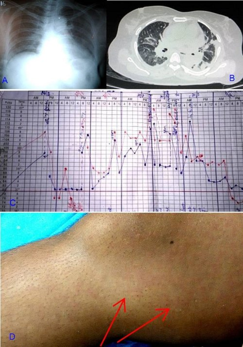 small resolution of the patient s imagings fever chart and rash a chest radiograph showed cardiomegaly and