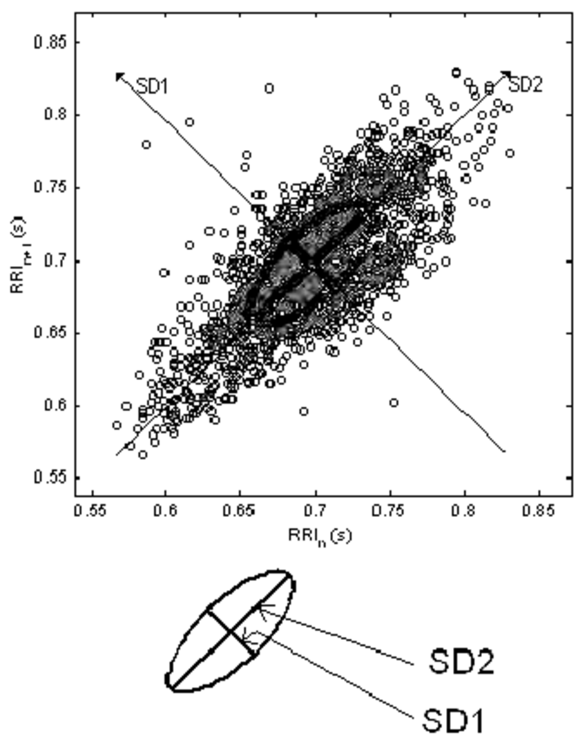 The Poincaré plot. SD1 and SD2