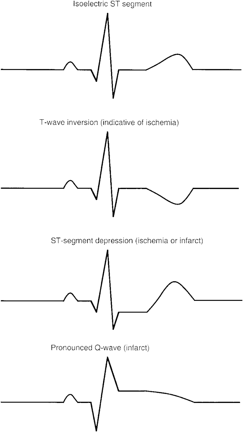 medium resolution of example of 1 normal isoelectric ecg tracing and 3 abnormal ecg tracings fig