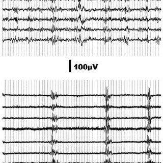 (PDF) Brain burst suppression activity
