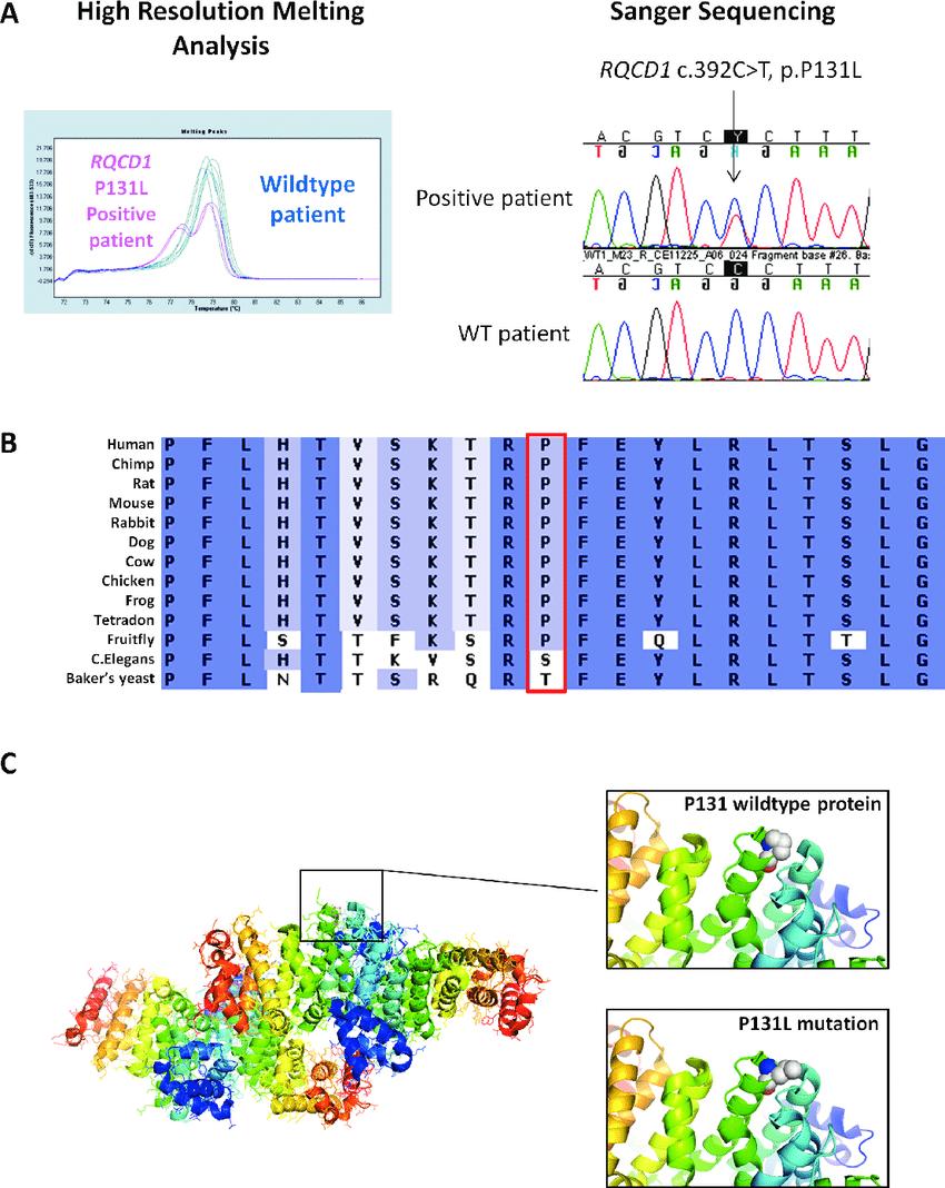 medium resolution of recurrent hotspot rqcd1 p131l mutation a representative melting peak curve from a high