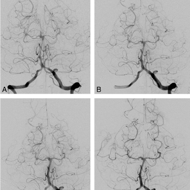 (PDF) Reversible Cerebral Vasoconstriction Syndrome