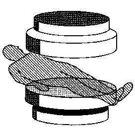 3. A typical lumbar vertebra: a) superior view, b) lateral