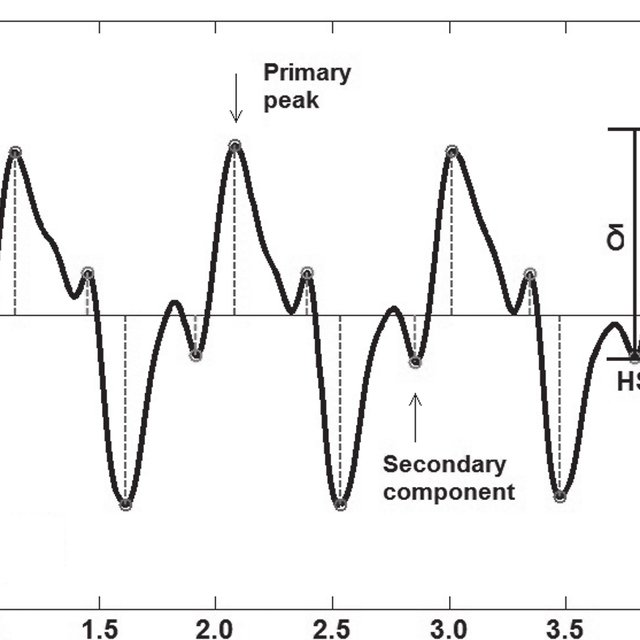 -waveforms of pelvic obliquity during gait in a healthy