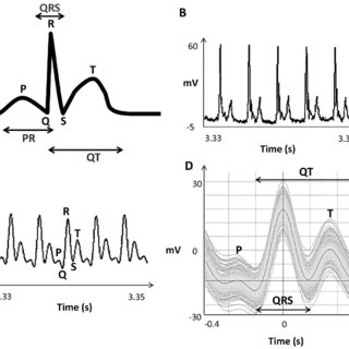 Optimisation of ECG recording system. A) Mean ECG interval