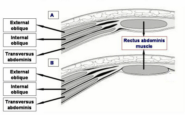 Formation of the rectus sheath in horizontal section