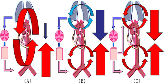 Schematic diagrams of circulation during extracorporeal