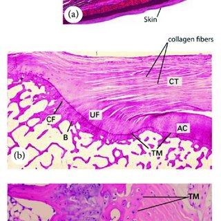 Decorin deficiency results in aberrant tendon collagen