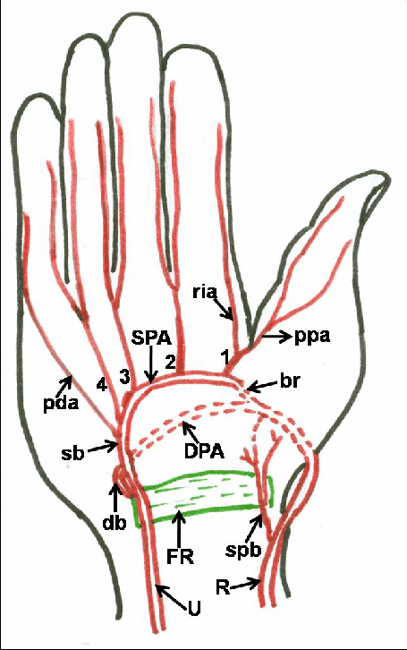 Schematic Drawing Showing Variant Formation And