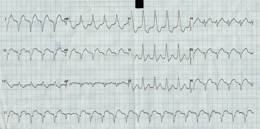 ECG showing monomorphic Ventricular tachycardia of Right