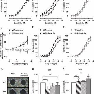(PDF) Calcium-sensing receptor antagonists abrogate airway