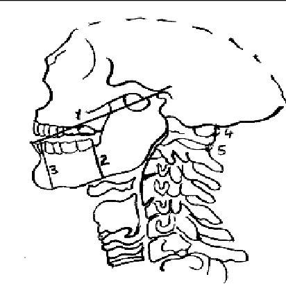 LEMON airway assessment method ; 1 = Inter-incisor