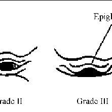 Laryngoscopic view. Grades I-IV by Cormack and Lehane