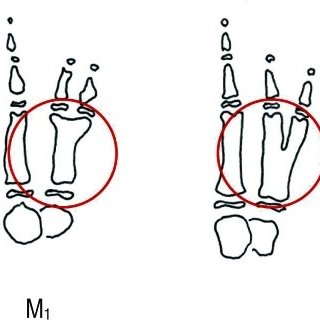 (PDF) New Classification of Polydactyly of the Foot on the