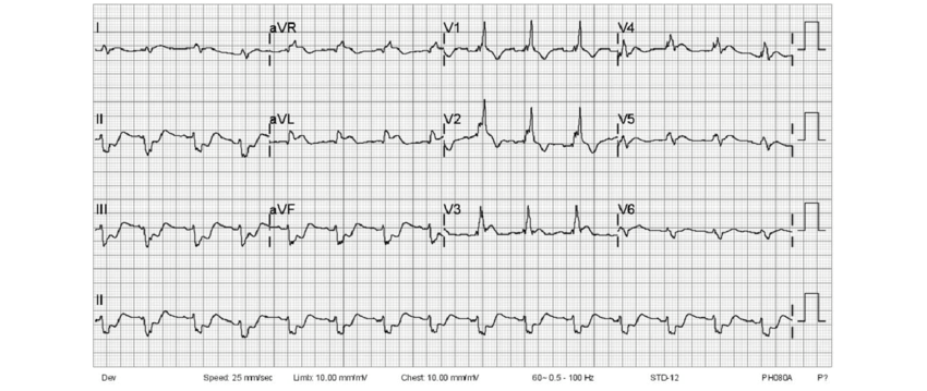 Follow-up ECG showed complete RBBB with ST segment vector