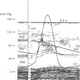 Proposed mechanism of systolic anterior motion of the