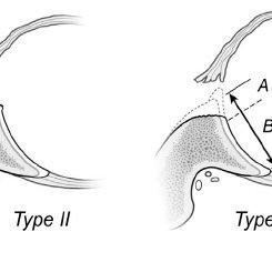 Glenoid rim lesion types associated with anterior
