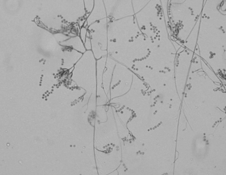 Microscopic morphology of A. versicolor isolated from this