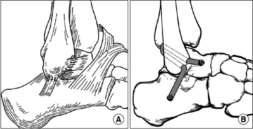 (A) Modified Brostrum procedure-direct lateral ligament