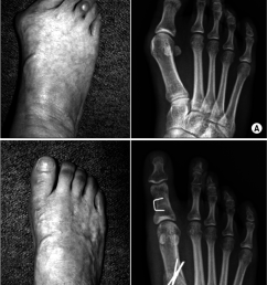 a preoperative gross photo and the plain radiograph of the hallux valgus foot with [ 850 x 1146 Pixel ]