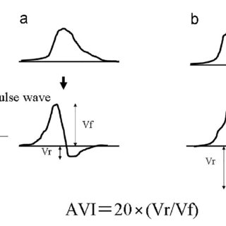 The measurement theory of AVI. (a) indicates normal