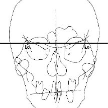 Superimposition of presurgical and posttreatment lateral