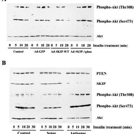 Amino acids infusion impairs insulin-stimulated IRS-1