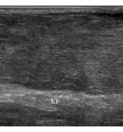 x ray of the ankle x ray of the ankles showed thickening of [ 850 x 1053 Pixel ]