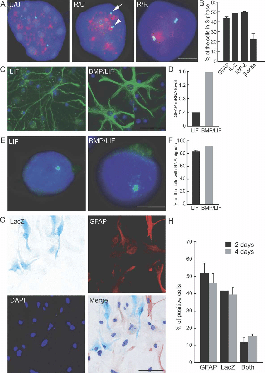 hight resolution of asynchronous replication timing and monoallelic expression of gfap after stimulation a representative images of simultaneous gfap dna fish and brdu