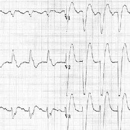 ECG of acute myocardial infarction in a left bundle branch