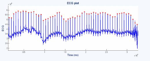 Rpeak detection using PanTompkins method The tachogram