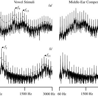 (PDF) Envelope and spectral frequency-following responses