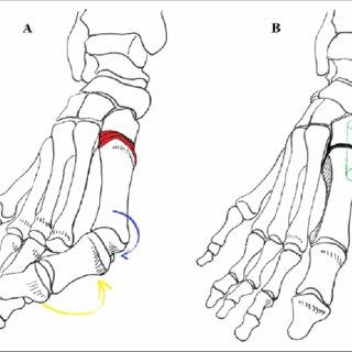 Peroneus longus activation test: (A) typical hallux valgus