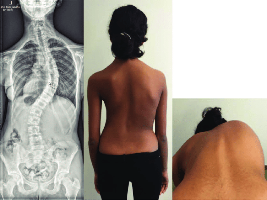 A typical case of adolescent idiopathic scoliosis showing ...