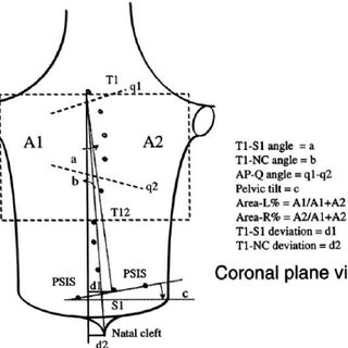 Major deformity indices measured on the Coronal plane . 1
