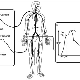Determination of flow-mediated dilation and reactive