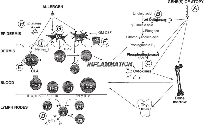 Pathophysiologic puzzle of atopic dermatitis. Circled