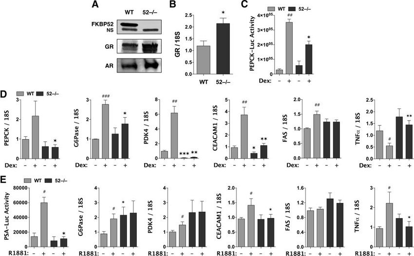 Up-regulation of GR protein but reduced GR activity at
