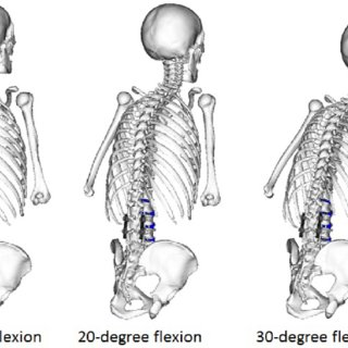 sualization of simulated 40-deg flexion movement of the