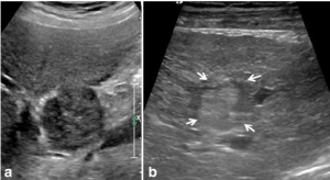 Examples of intrahepatic cholangiocarcinoma (iCCA) on ultrasound in two | Download Scientific