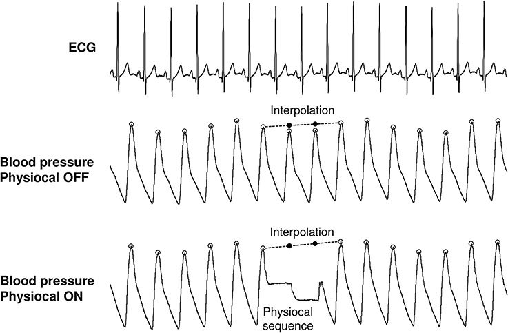 Processing of continuous blood pressure signals with