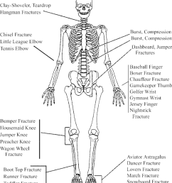 drawing of a skeleton standing in standard anatomic position illustrates the relative location of musculoskeletal injuries [ 850 x 960 Pixel ]