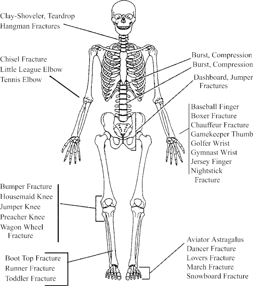 hight resolution of drawing of a skeleton standing in standard anatomic position illustrates the relative location of musculoskeletal injuries