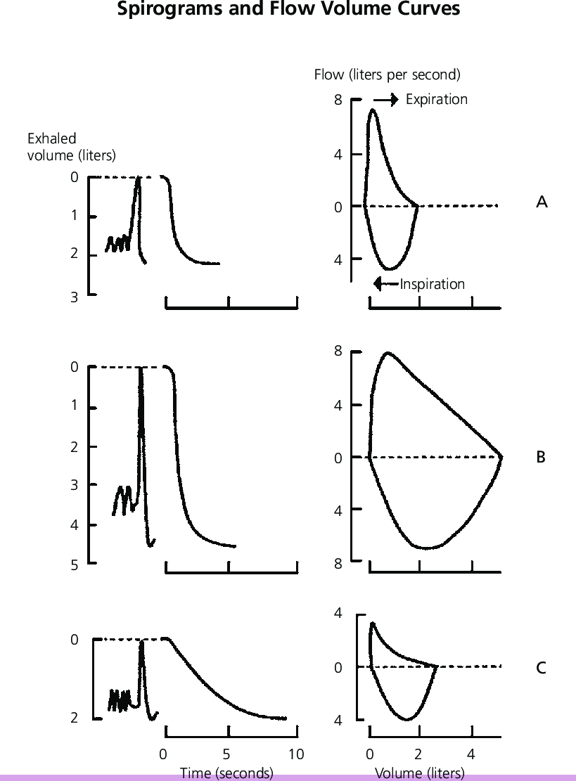 Spirograms and flow volume curves. (A) Restrictive