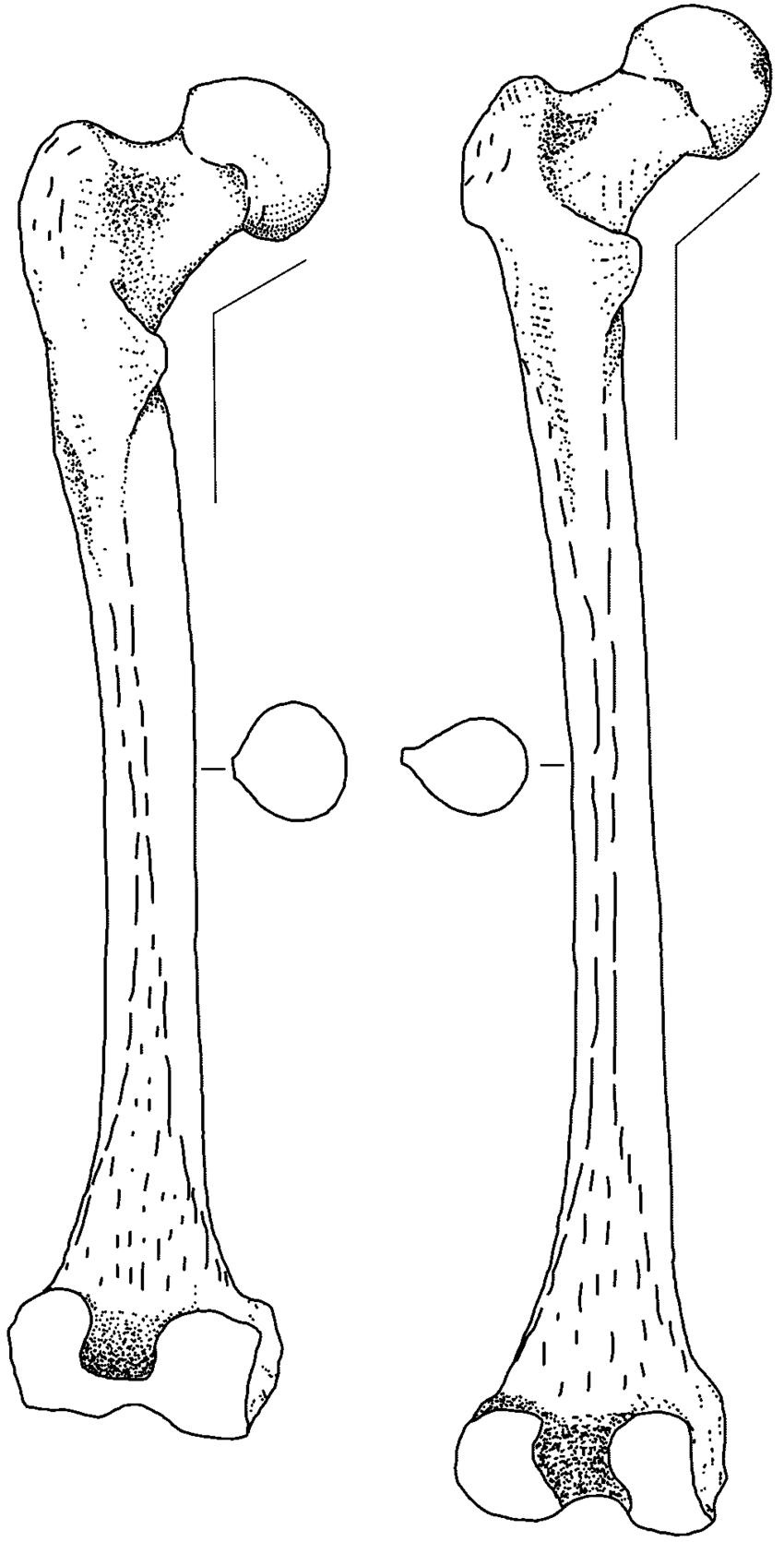 medium resolution of distinctive features of the neandertal femur left the neandertal 1 download scientific diagram
