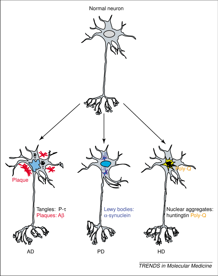 Schematic representations of neuronal degeneration