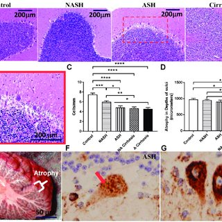 Patients with ASH or NASH show neuronal loss in the ...