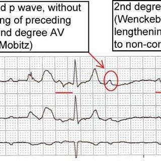 Telemetry strip of second degree atrioventricular (AV