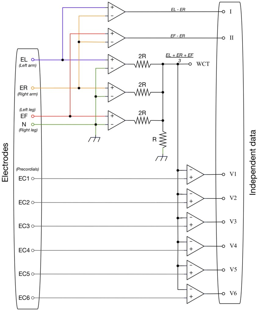 hight resolution of generalized functional diagram for a typical 12 lead ecg system doi 10 1371
