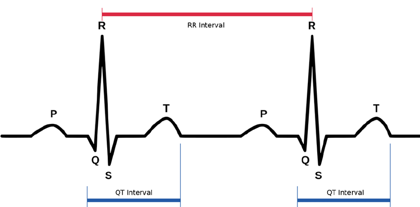 labeled ekg diagram dodge neon stereo wiring online typical ecg trace with qt and rr intervals image based on waves